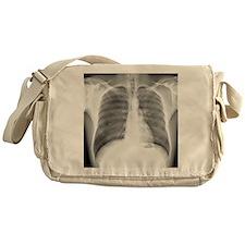 Pneumothorax, X-ray Messenger Bag
