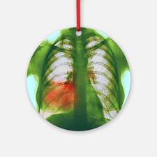 Pneumonia, X-ray Round Ornament