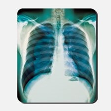 Pneumothorax, X-ray Mousepad