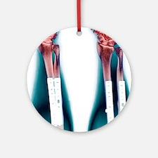 Pinned broken arm, X-ray (2 views) Round Ornament