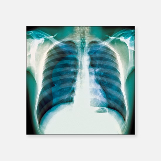 "Pneumothorax, X-ray Square Sticker 3"" x 3"""