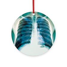 Pneumothorax, X-ray Round Ornament