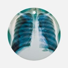 Pneumothorax, X-ray Round Ornament