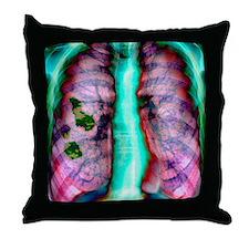 Pleural plaque, X-ray Throw Pillow