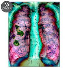 Pleural plaque, X-ray Puzzle