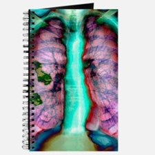 Pleural plaque, X-ray Journal