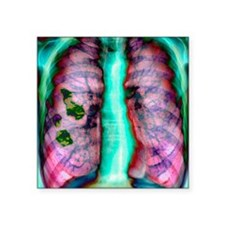 "Pleural plaque, X-ray Square Sticker 3"" x 3"""