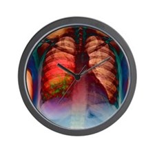 Pneumonia, X-ray Wall Clock