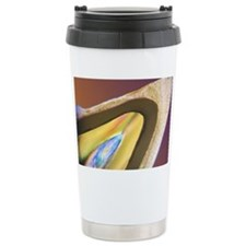 Polarised LM of a tooth with a  Travel Mug