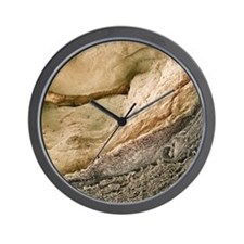Polycystic kidney disease Wall Clock