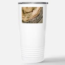 Polycystic kidney disease Travel Mug