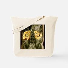Polycystic kidneys, MRI scan Tote Bag
