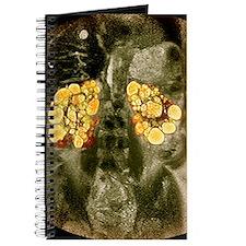 Polycystic kidneys, MRI scan Journal