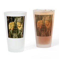 Polycystic kidneys, MRI scan Drinking Glass