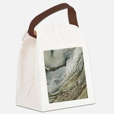 Polycystic kidney disease Canvas Lunch Bag