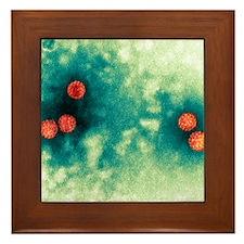 Polyoma virus particles, TEM Framed Tile