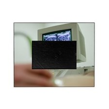 Pregnancy ultrasound Picture Frame