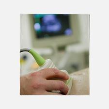 Pregnancy ultrasound Throw Blanket
