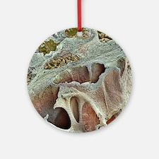 Prostate cancer, SEM Round Ornament