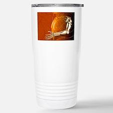 Prosthetic robotic arm, compute Travel Mug