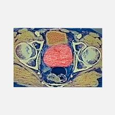Prostate cancer, MRI Rectangle Magnet