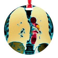 Pulmonary embolism, CT scan Ornament