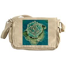 Rectal cancer cell, SEM Messenger Bag