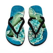 Rectal cancer cell, SEM Flip Flops