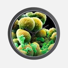 Prostate cancer cells, SEM Wall Clock