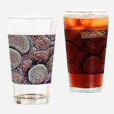 Prostate cancer, SEM Drinking Glass