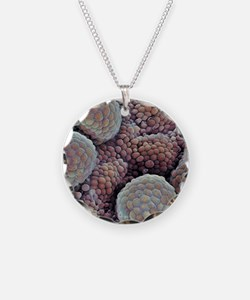 Prostate cancer, SEM Necklace