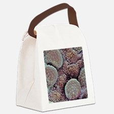 Prostate cancer, SEM Canvas Lunch Bag