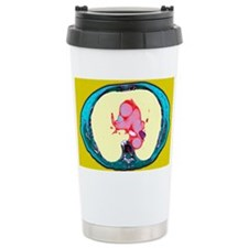 Pulmonary embolism, CT scan Travel Mug