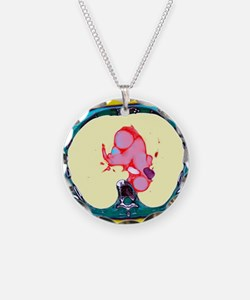 Pulmonary embolism, CT scan Necklace