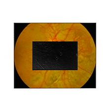 Retina damage in diabetes Picture Frame