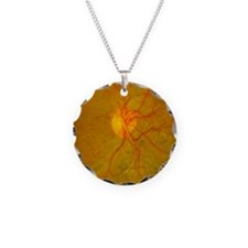Retina damage in diabetes Necklace