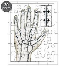 Raynaud's disease Puzzle