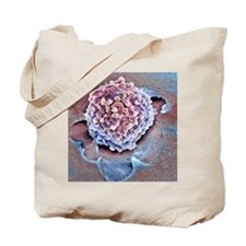 Rectal cancer cell, SEM Tote Bag