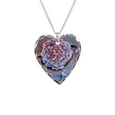 Rectal cancer cell, SEM Necklace Heart Charm