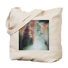Rib fracture, X-ray Tote Bag
