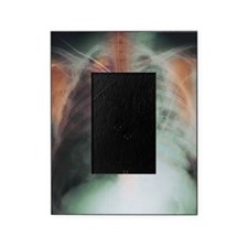 Rib fracture, X-ray Picture Frame