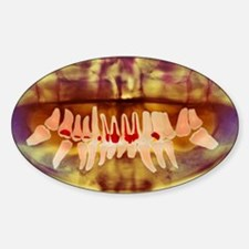 Root-canal treatment, dental X-ray Decal