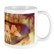 Root-canal treatment, dental X-ray Mug