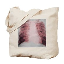 Sarcoidosis of the lungs, X-ray Tote Bag