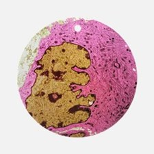 Sarcoma cancer cell, TEM Round Ornament