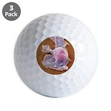 Sarcoma cell, SEM Golf Ball