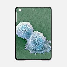 Sarcoma cells, SEM iPad Mini Case