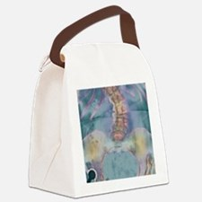 Scoliosis spine deformity, X-ray Canvas Lunch Bag