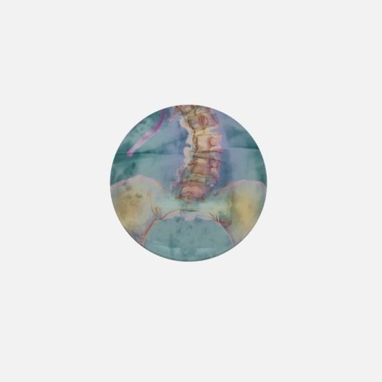Scoliosis spine deformity, X-ray Mini Button