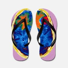 Secondary brain cancers, CT scan Flip Flops